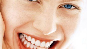 sorriso-perfetto-denti-star